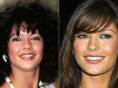 Veneers, celebrity smiles, Catherine Zeta Jones