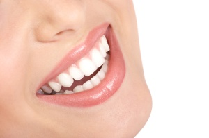 woman smile, veneers, smile,